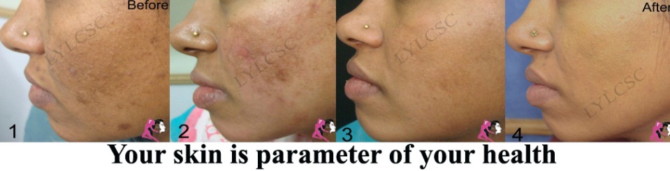 Laser Black Skin Laser Skin Resurfacing